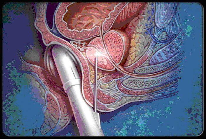 Биопсия предстательной железы фото