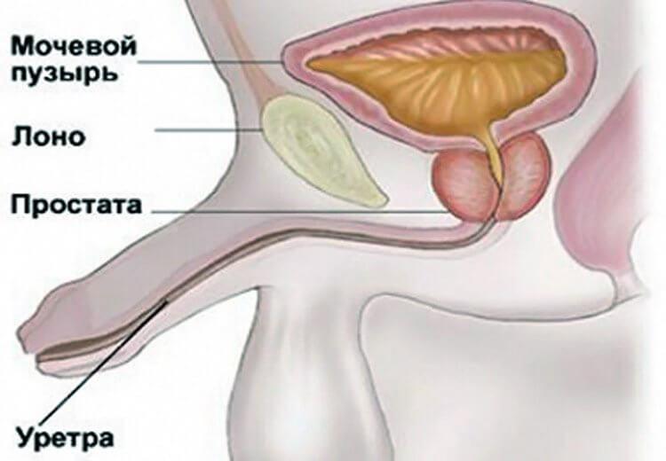 Как возникает уретрит