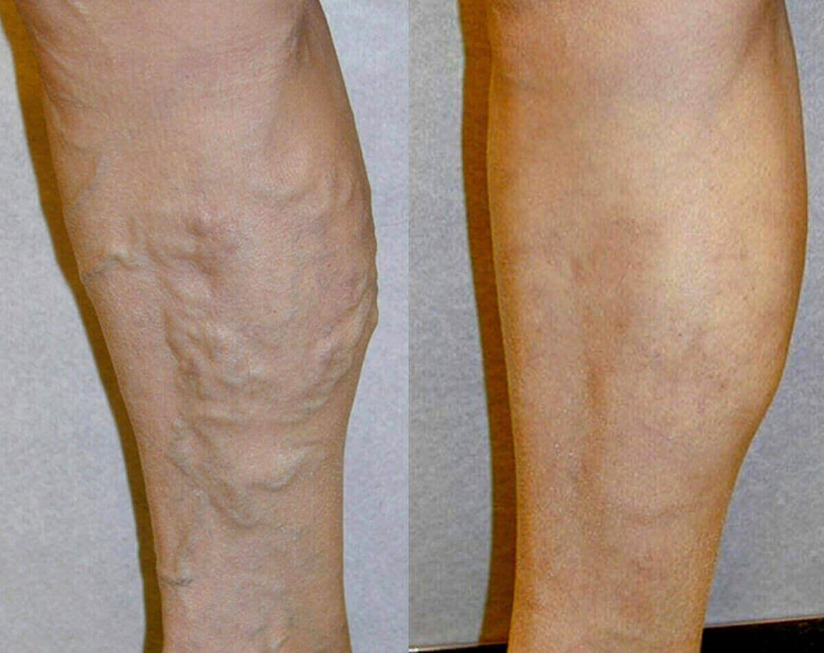 Отеки на ногах при варикозе лечение