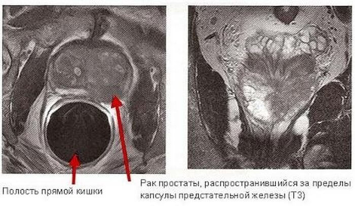 диагностика онкологии железы