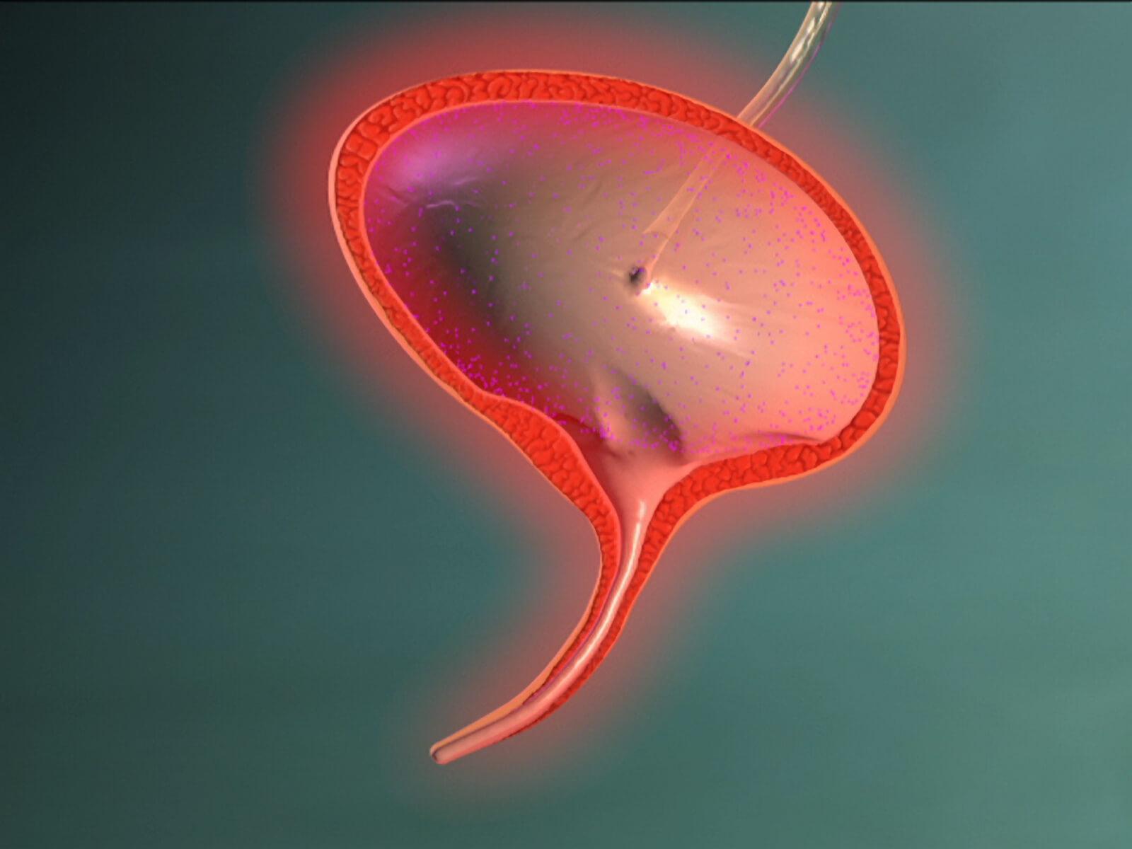 Воспаление мочевого пузыря симптомы 11 фотография