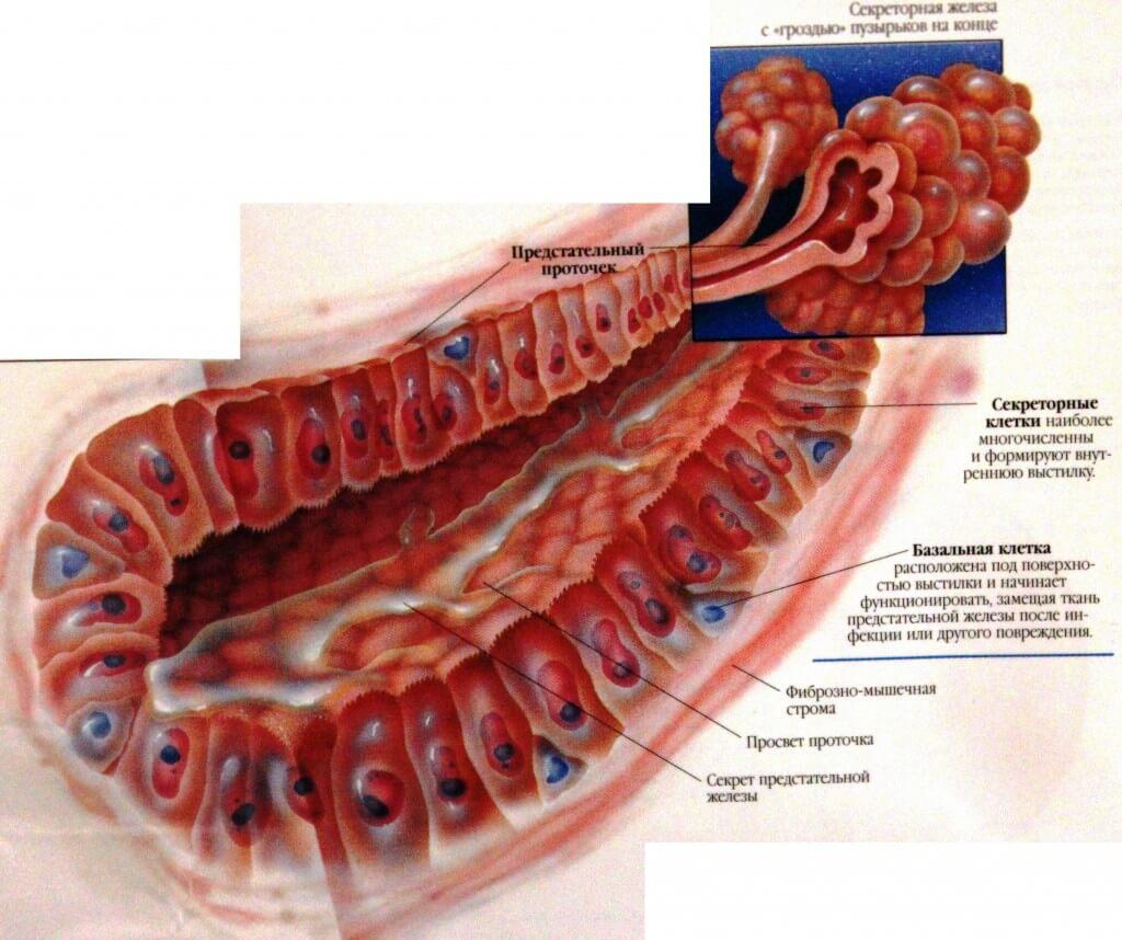 Калькулезный простатит аденома