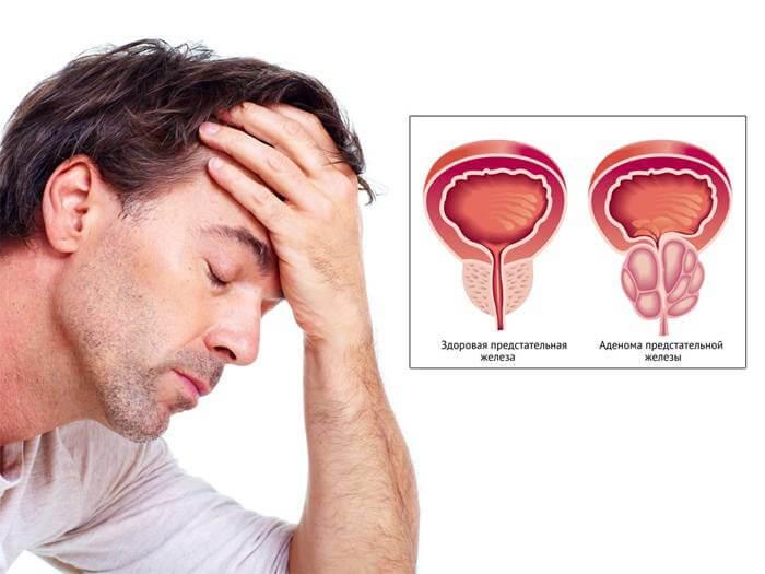 Предстательная железа: размеры, норма и отклонения