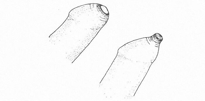 Возможно ли лечение фимоза без обрезания?