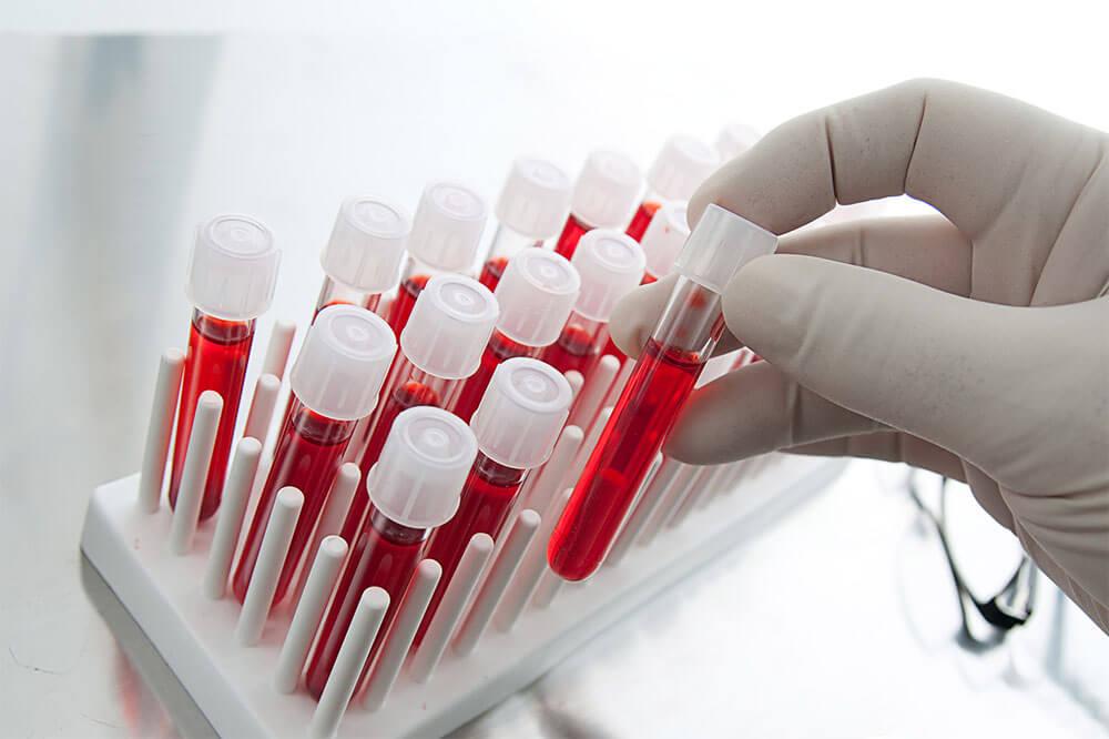 Выявление уровня гемоглобина