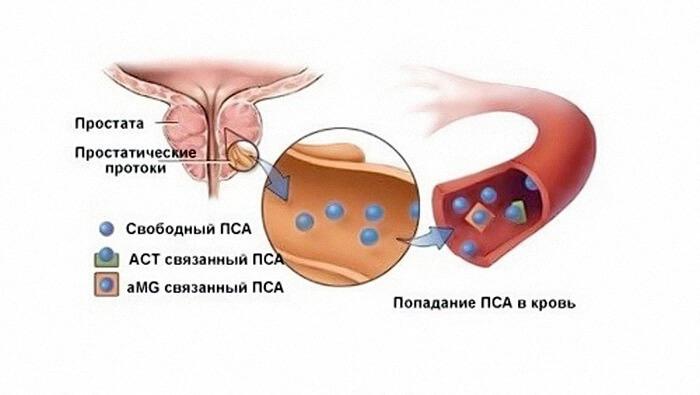 Норма ПСА после операции по удалению рака простаты