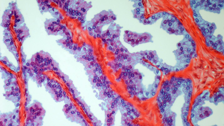 У кого рак предстательной железы