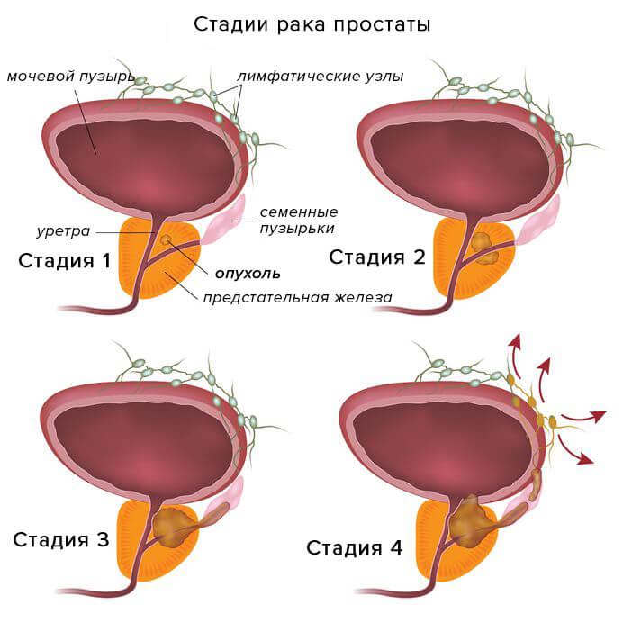 4 стадии рака простаты
