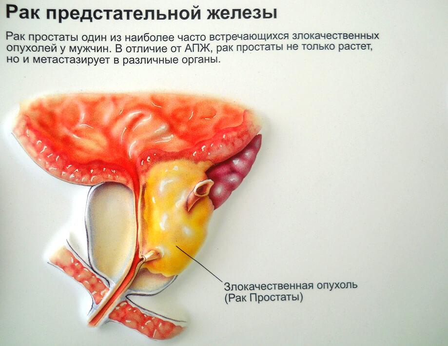 Признаки рака предстательной железы первые симптомы