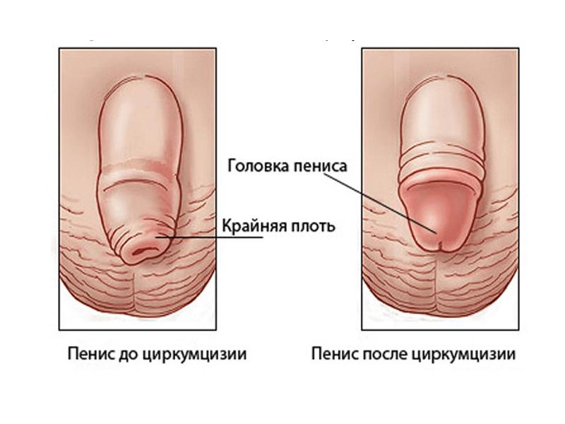 Обрезание у мужчин: плюсы и минусы: http://oprostatite.info/muzhskoe-zdorove/plyusy-i-minusy-obrezaniya-u-muzhchin/
