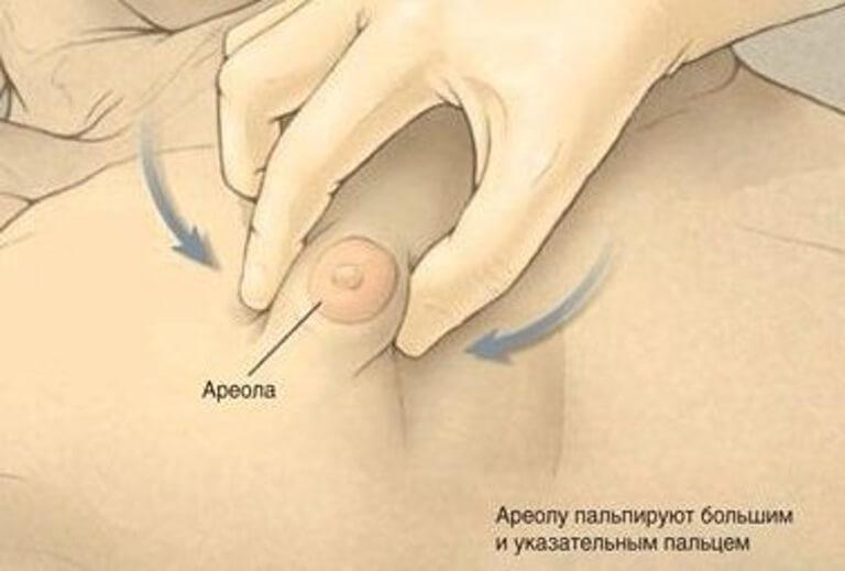 способ как можно определить гнекомастию