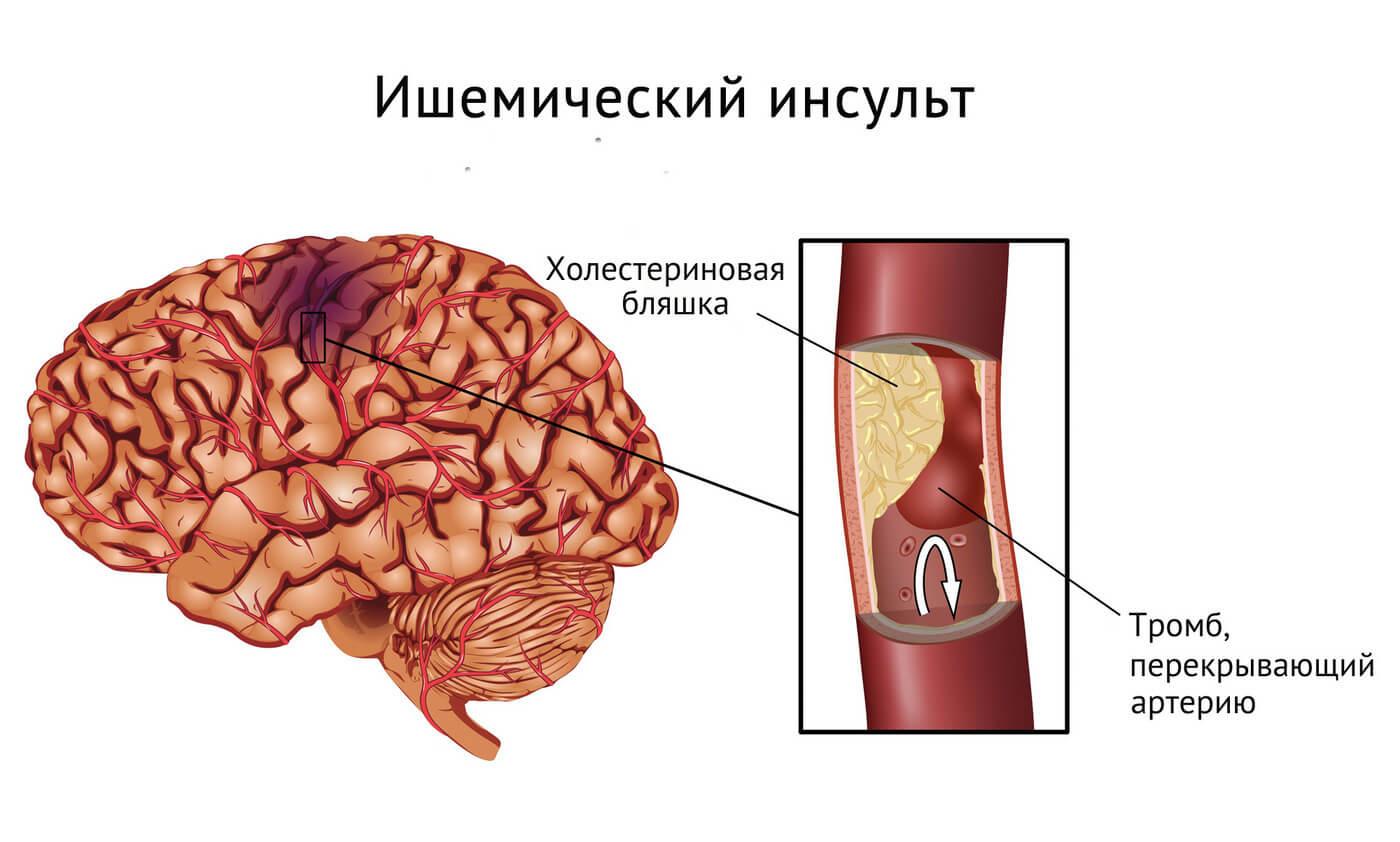 влияет ли курение на кровеносные сосуды