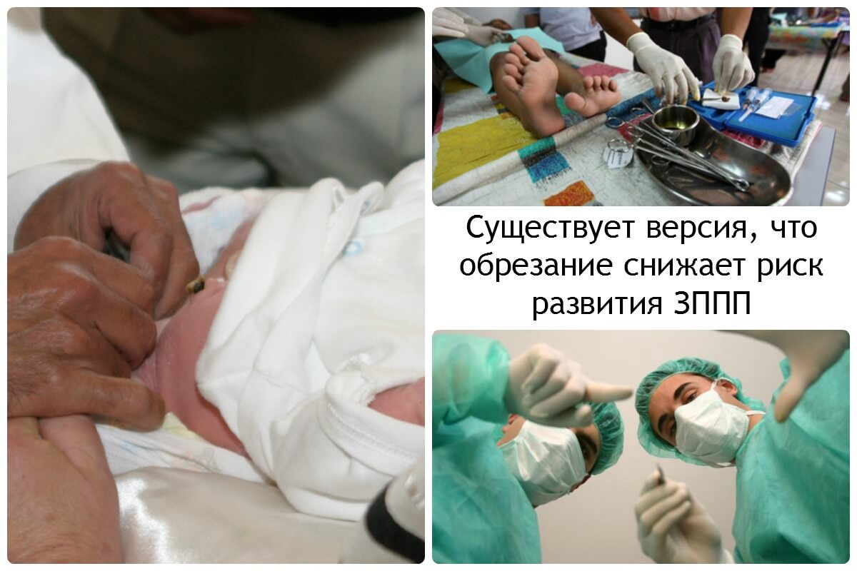 Обрезание пениса фото 2 фотография