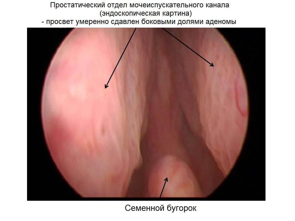 симптомы простатита фото у мужчин