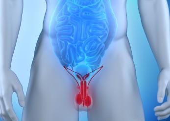 рак и аденома предстательной железы