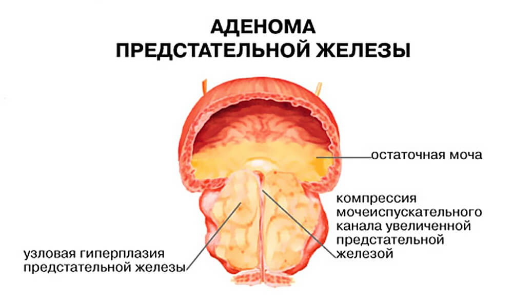 Опухоль предстательной железы