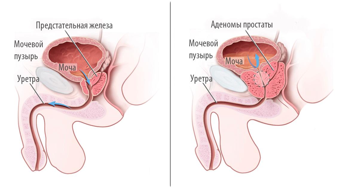 Упражнения от калькулезного простатита