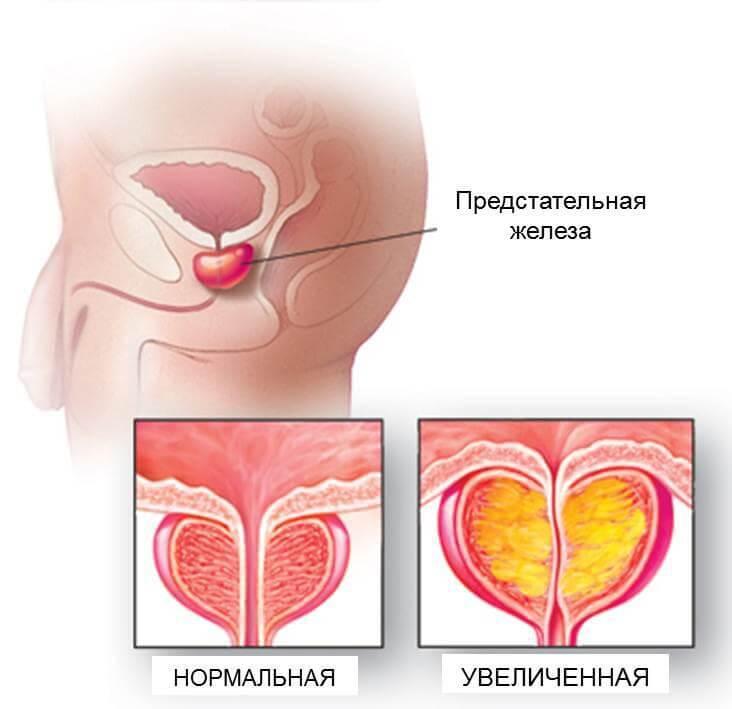 предстательная железа анатомия