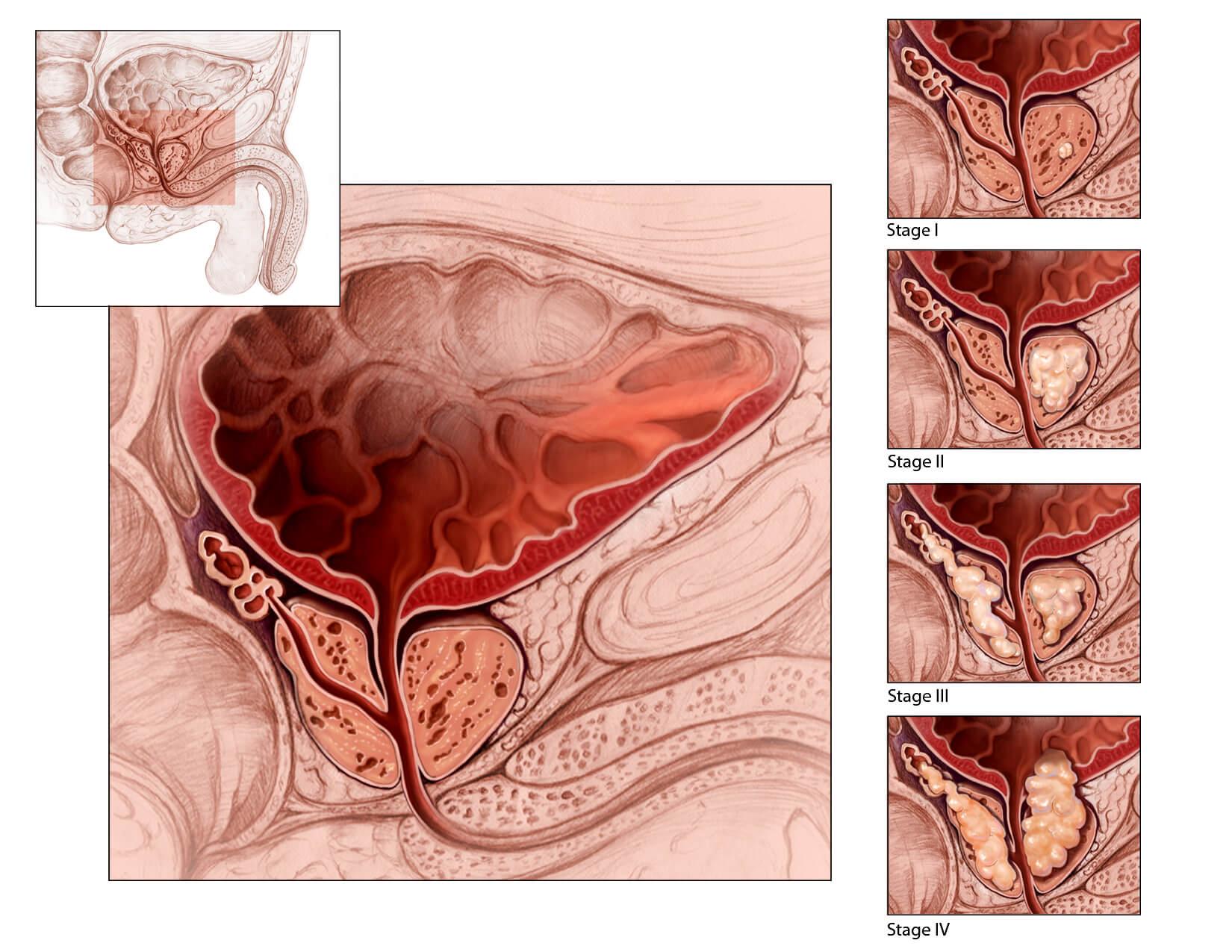 Предстательная железа расположение и патологии
