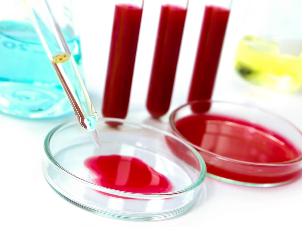 определение свободного и общего антигена в крови