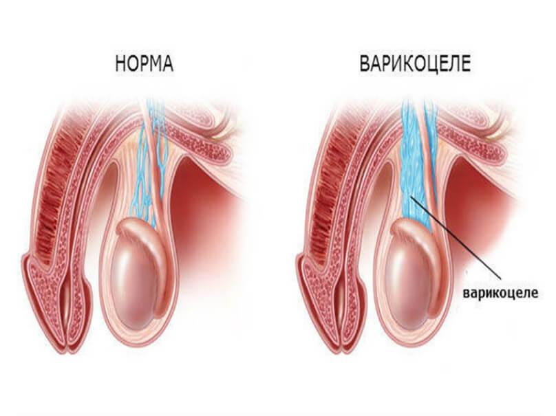заболевание варикоцеле