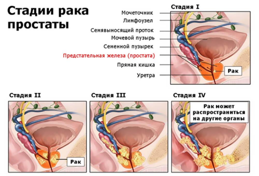 Аденома простаты лапароскопическая операция