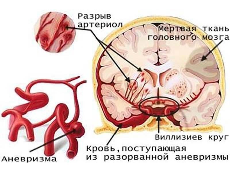 последсвтия от курения для мозга