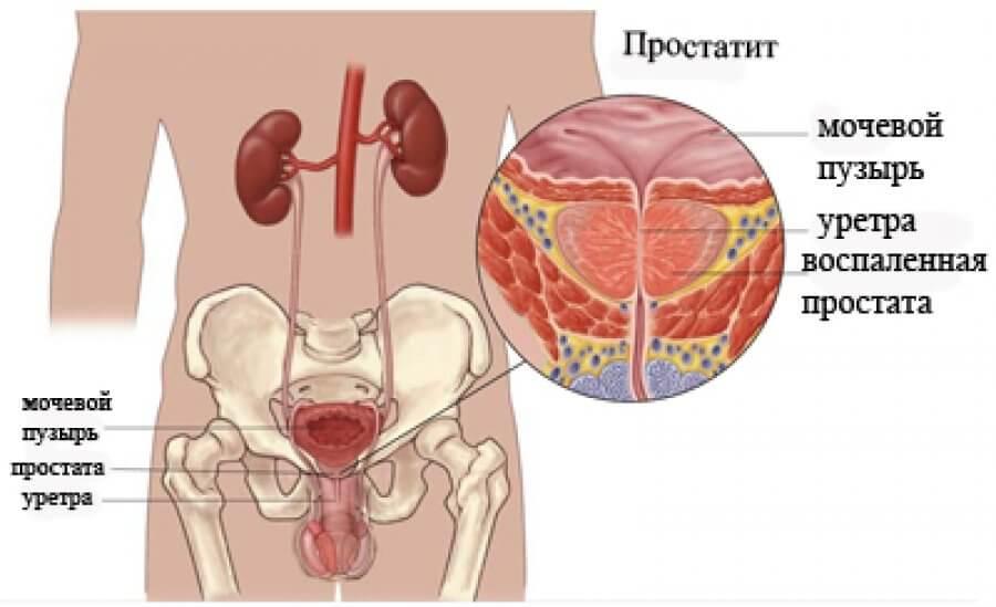 Может ли остеохондроз стать причиной заболевания почек и мочевого пузыря - Медицинский портал