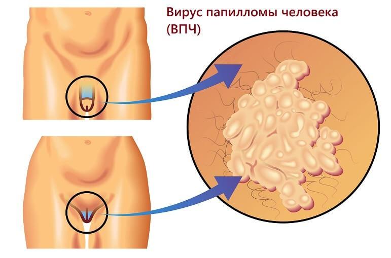Бородавки на статевих органах