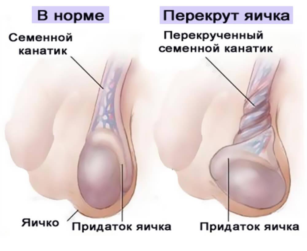 почему у мужчин болит яичко левое причины