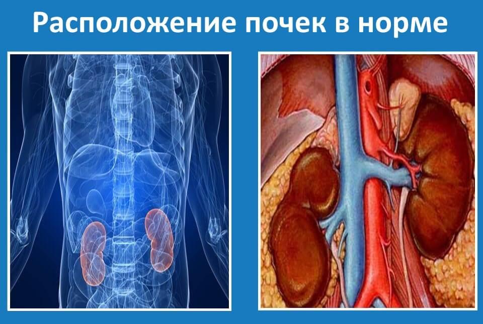 диагностика опущения левой или правой почки