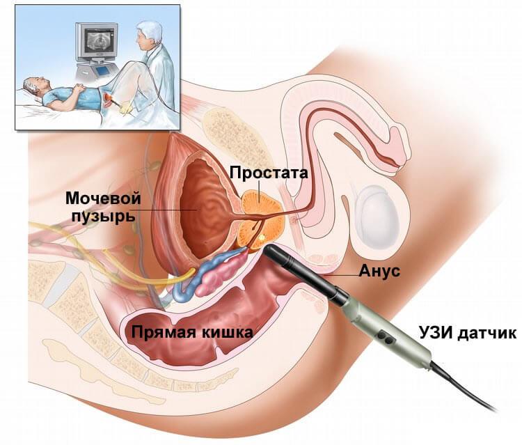ТРУЗИ предстательной железы при остром простатите