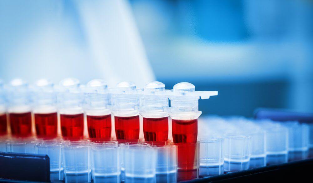 пса анализ крови при простатите норма