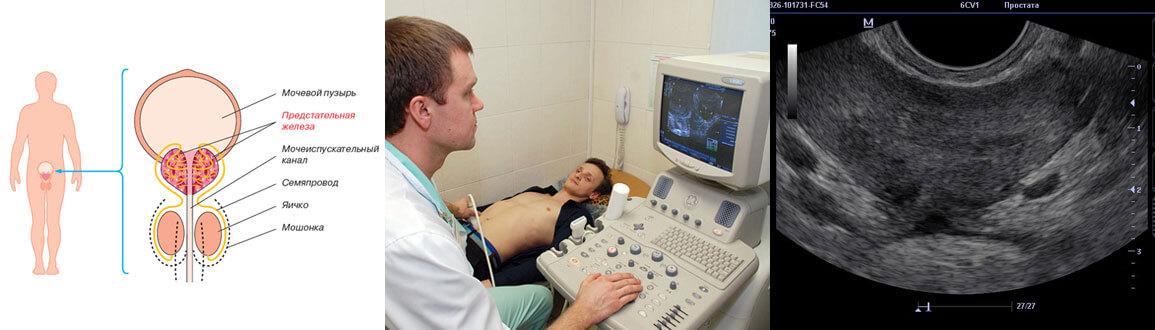 причины и диагностика застойного простатита у мужчин