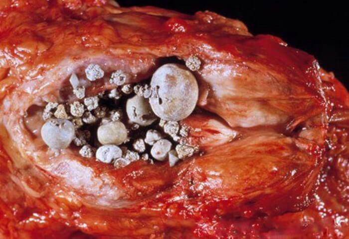 симптомы калькулезного простатита