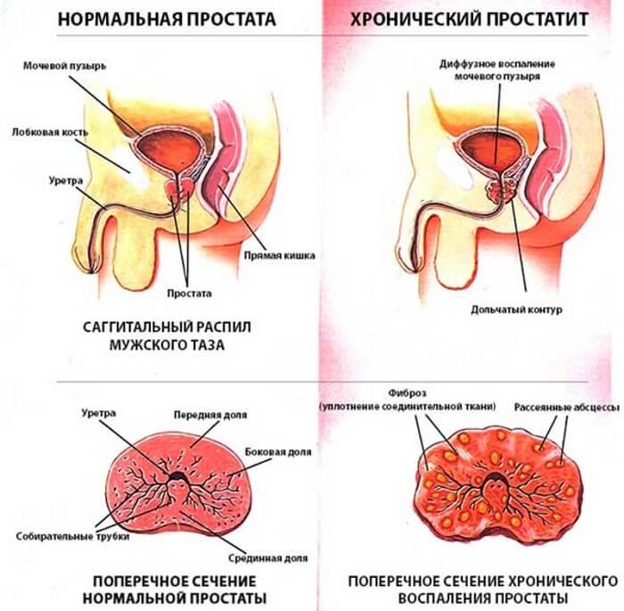 Хронический простатиты симптомы и лечение