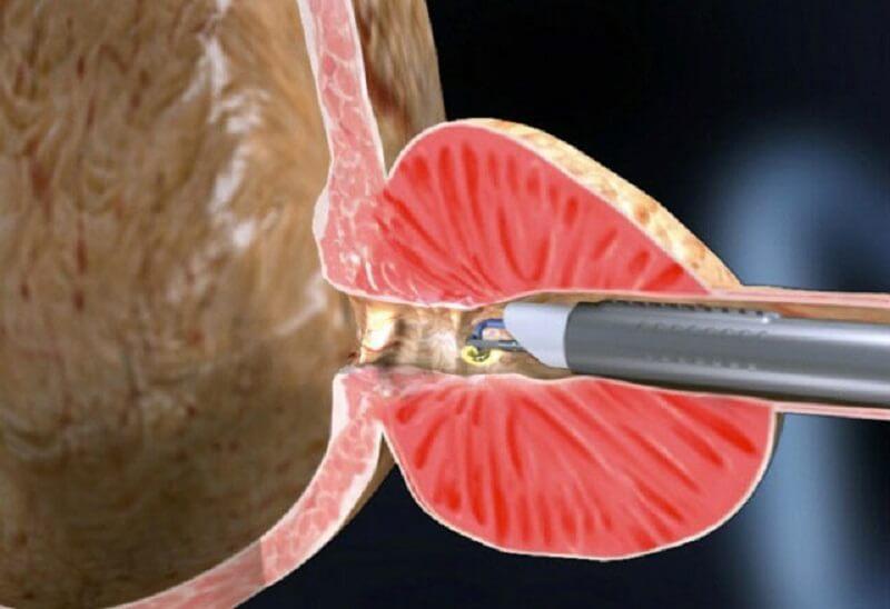 Электровапоризация предстательной железы