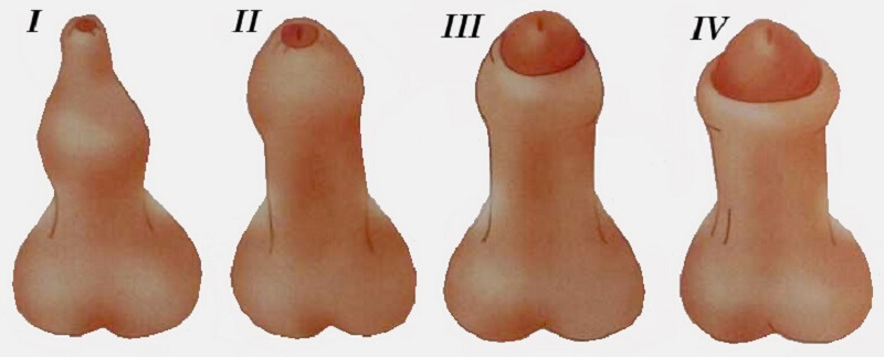Размер полового члена при мастурбации и при сексе