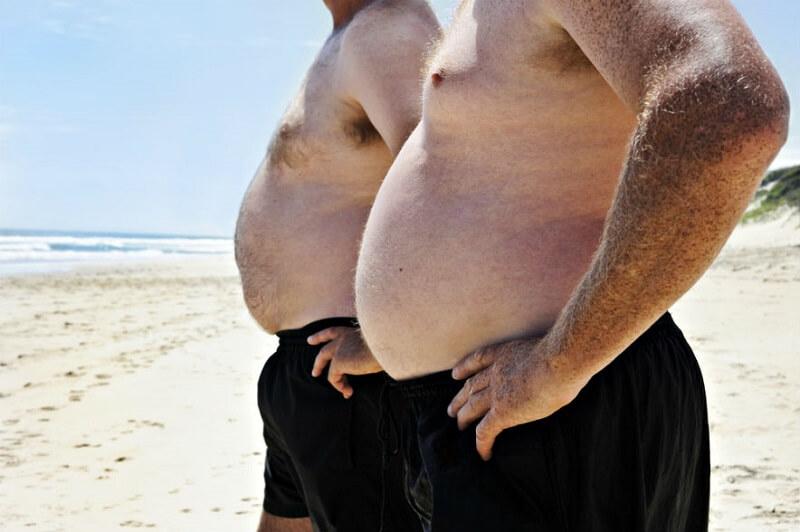 ожирение 1 степени у мужчин симптомы и лечение