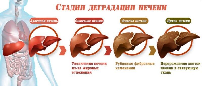 симптомы и механизм развития ожирения печени