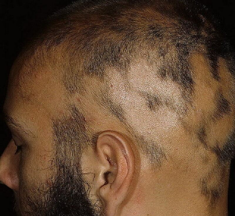 стадии и признаки гнездной алопеции у мужчин
