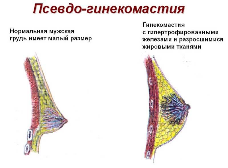 симптомы и признаки ложной гинекомастии у мужчин
