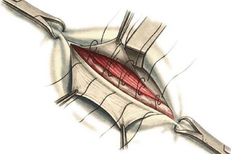 операция при паховой грыже у мужчин