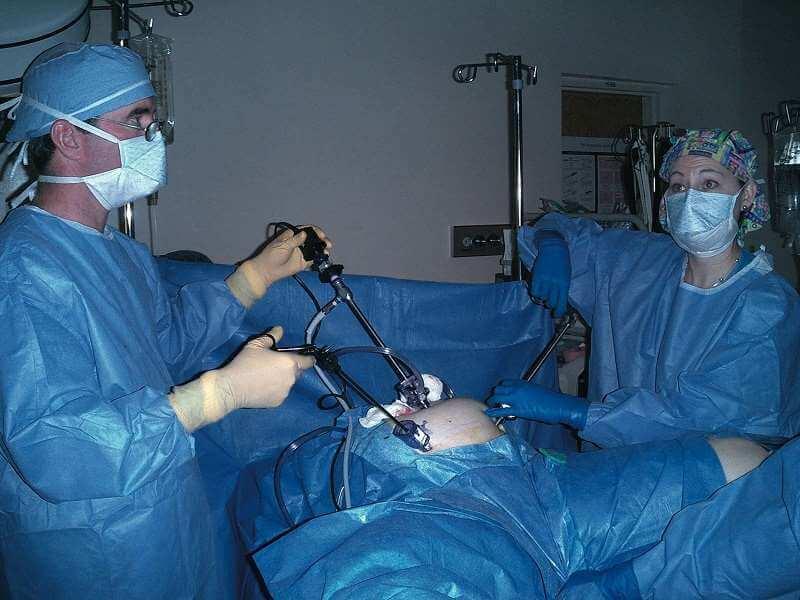 лапароскопия при паховой грыже