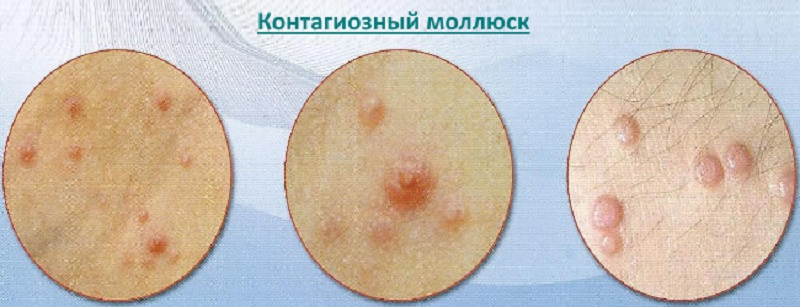 фото контагиозного моллюска у мужчин