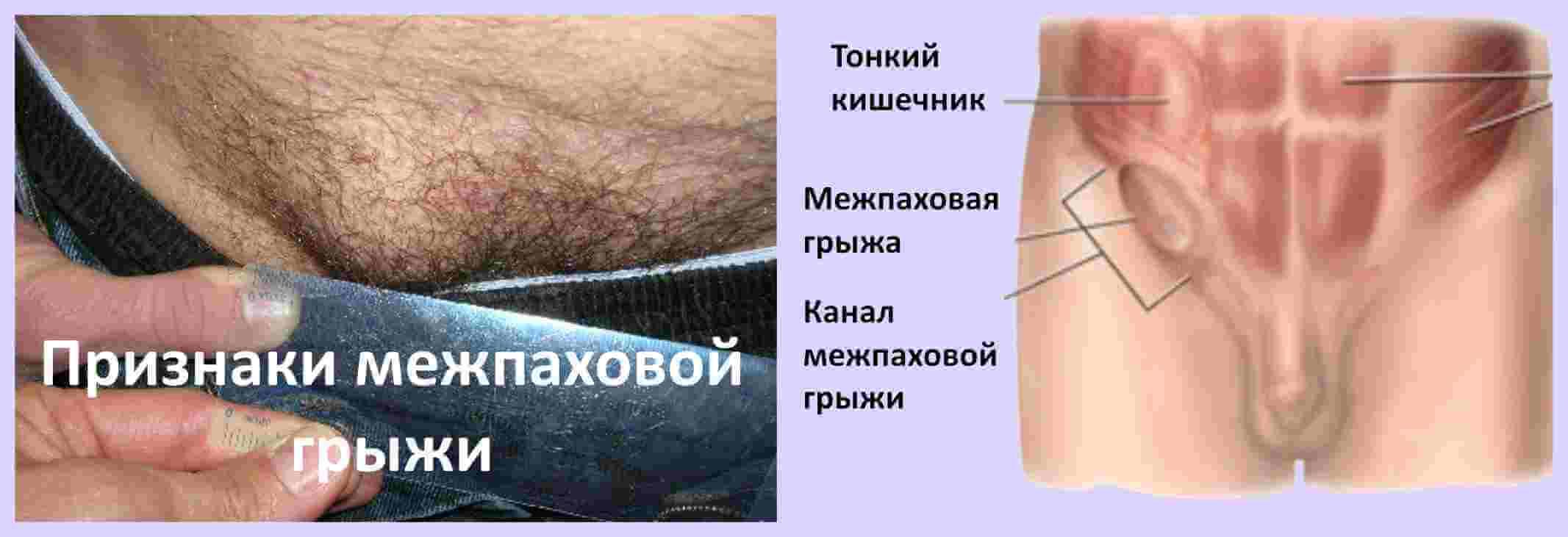 признаки межпаховой грыжи у мужчины