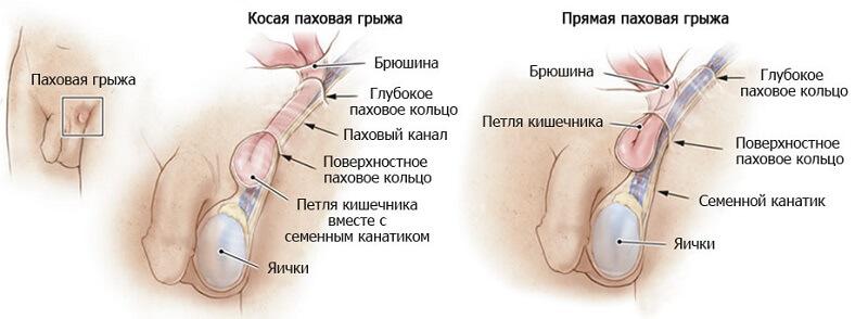 левосторонняя паховая грыжа у мужчины