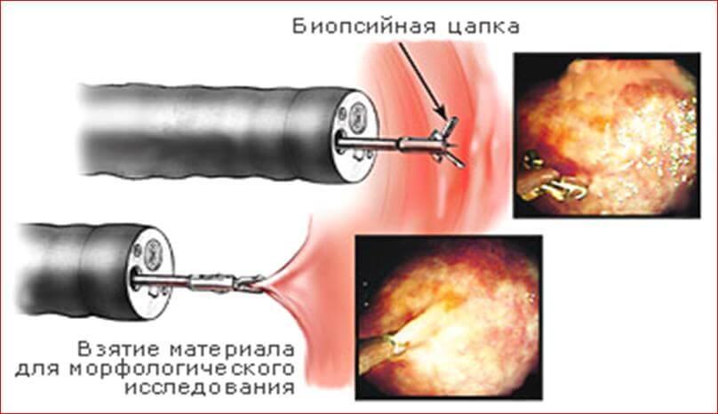 биопсия как мера выявления рака полового члена