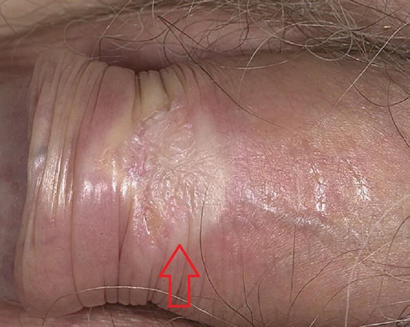 симптомы и признаки лейкоплакии члена