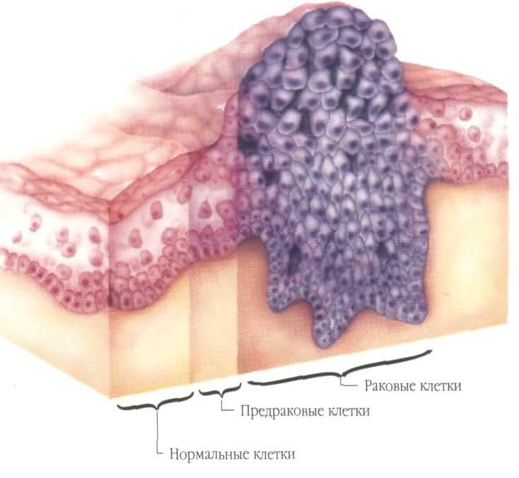 как образуется рак пениса